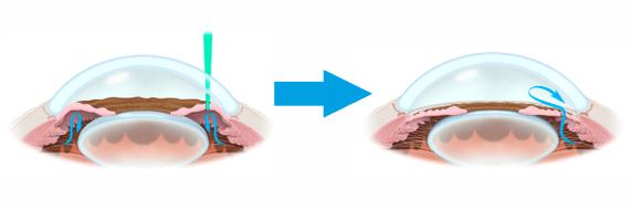 Лазерная иридотомия (иридэктомия)
