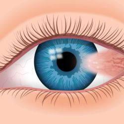 Птеригиум глаза. Лечение птеригиума в Новосибирске