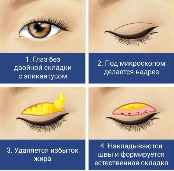 Этап 1. Блефаропластика азиатских глаз
