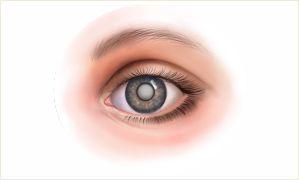 Лечение катаракты в Новосибирске – это микрохирургическое лечение: ✓За 7 мин, ✓Зрение до 100% картинка мини