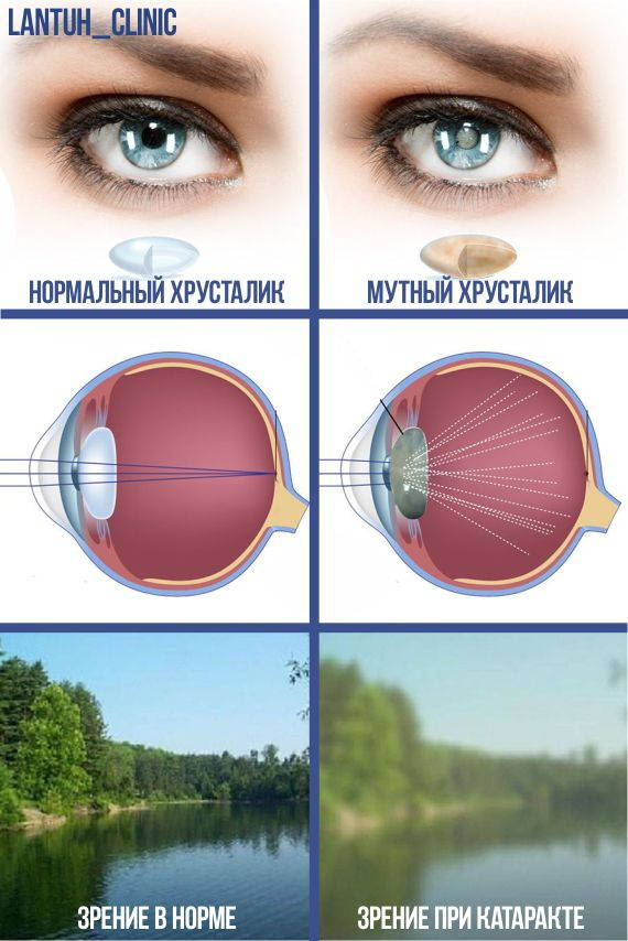 Когда необходима операция при катаракте в Новосибирске картинка