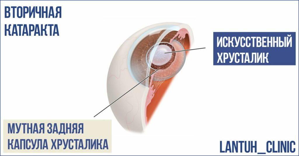 Что такое вторичная катаракта фото. Это помутнение задней капсулы хрусталика