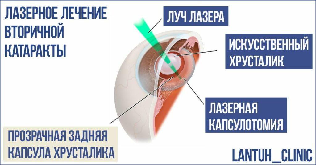 Фото лазерное лечение вторичной катаракты в Новосибирске. Лазерная капсулотомия