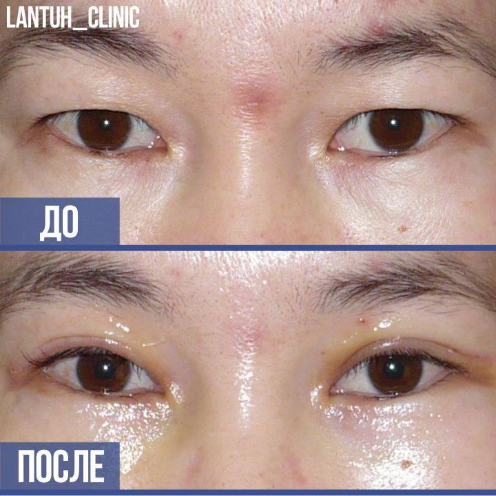 Блефаропластика азиатских глаз до после картинка