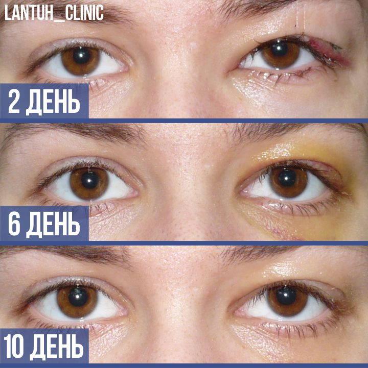 Птоз до после на левом глазу картинка