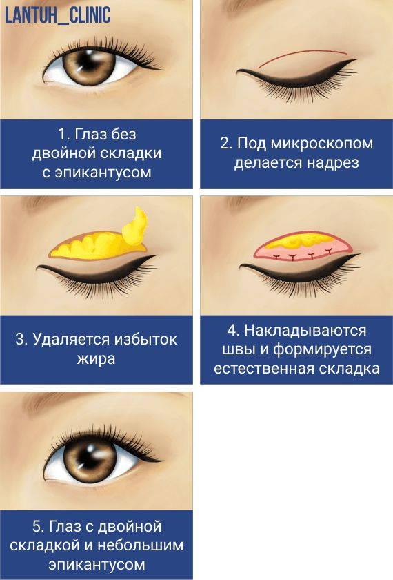 Блефаропластика азиатских глаз: европеизация век схема картинка